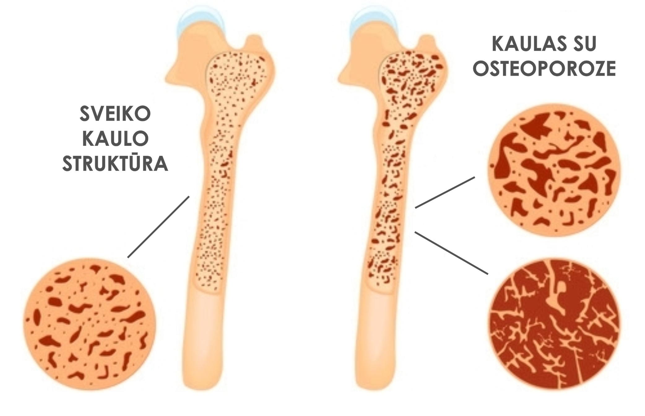 Svorio netekimas osteoporozė, Osteoporozė